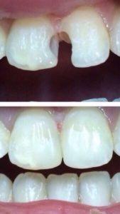 Лечение зубов - стоматологическая терапия