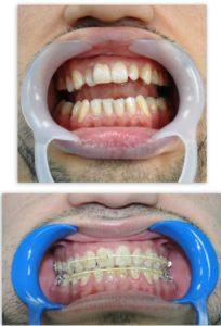 Эстетическая стоматология - художественная реставрация зубов