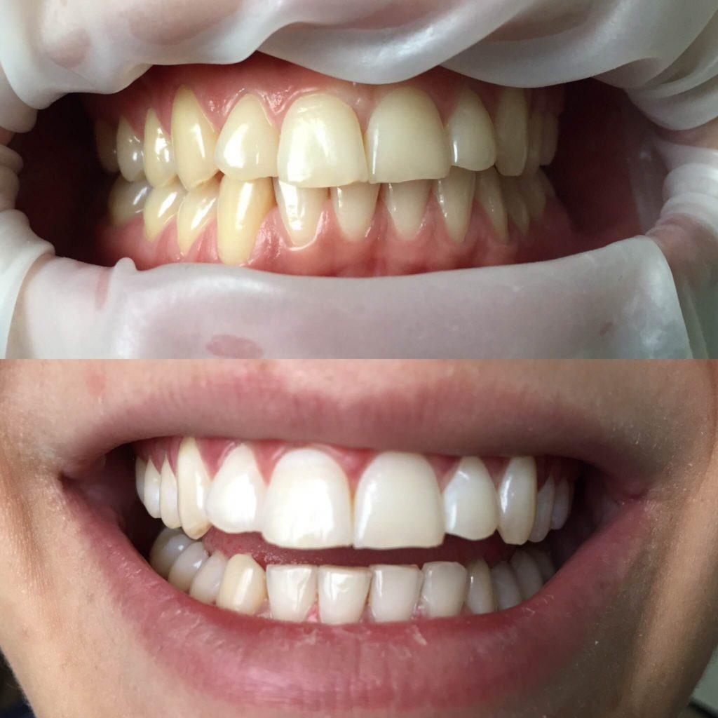 Профессиональная гигиена полости рта (профессиональная чистка зубов) и отбеливание зубов ZOOM.