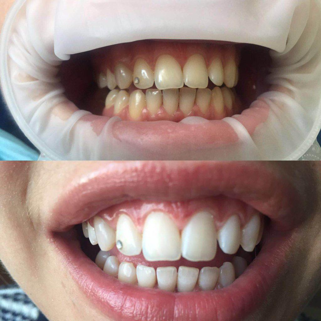 Профессиональная гигиена полости рта и отбеливание зубов ZOOM.